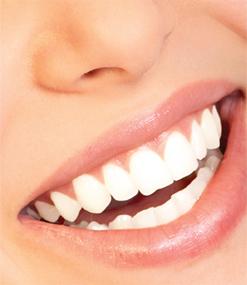 Chèque cadeau blanchiment des dents Nice bar à sourire
